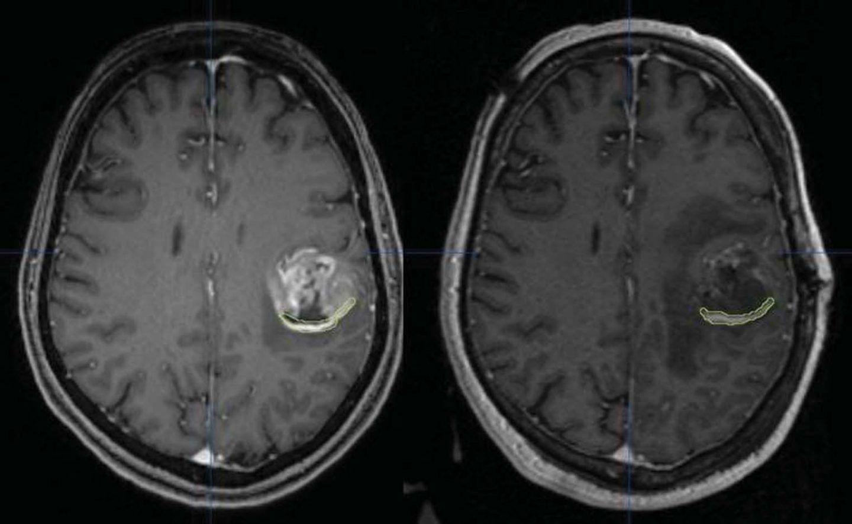 يمكن لحذف بروتين واحد أن يوقف سرطان الدماغ