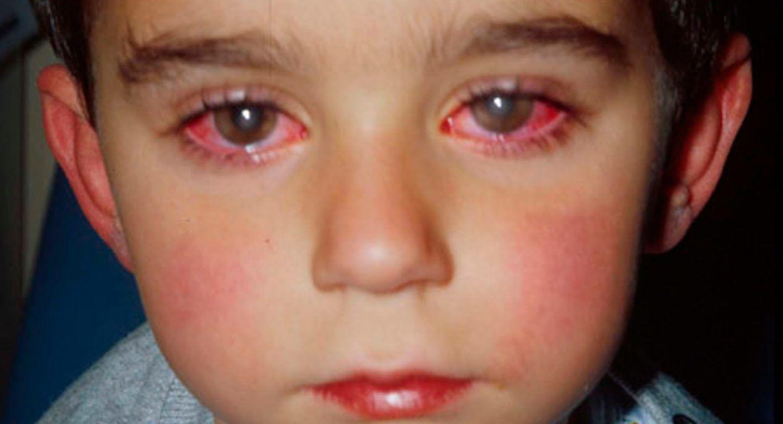 بينكي أو العين الوردية: ما هي وكيف يمكن علاجها؟