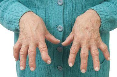 داء باجيت Paget's disease أكثر أنواع أمراض العظام شيوعًا بعد هشاشة العظام اضطراب في عملية إعادة تشكيل العظم ارتشاف الكالسيوم