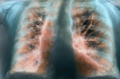التليف الرئوي مجهول السبب IPF: الأسباب والأعراض والتشخيص والعلاج التندب في النسيج الرئوي أمراض الرئة الخلالية أمراض الرئة
