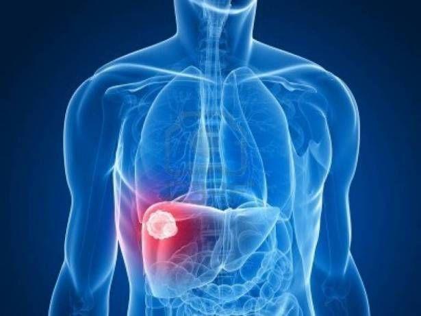 ما هو التهاب الكبد الفيروسي نوع سي ؟