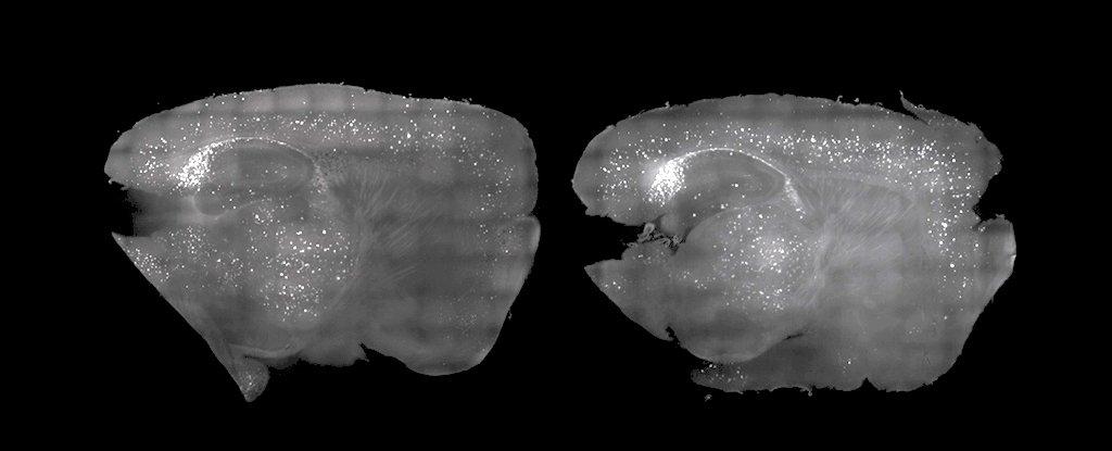 دماغ الفأر بعد العلاج (يسار) وقبله (يمين)