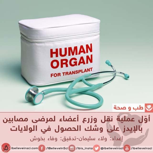 أوّل عملية نقل وزرع أعضاء لمرضى مصابين بالإيدز على وشك الحصول في الولايات المتحدة