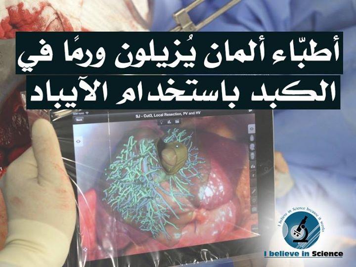 اطباء المان يزيلون ورما في الكبد باستخدام الآيباد