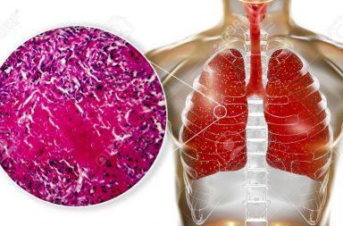 السل الدخني: الأسباب والأعراض والتشخيص والعلاج - إنتان خطير يصيب الرئتين فقط - المتفطرات السلية Mycobacterium tuberculosis
