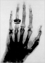 أول صورة للأشعة السينية لجسم بشري كانت ليد زوجة فيلهلم كونراد رونتجن