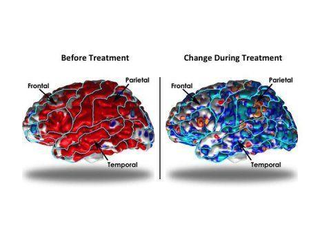 كيف يؤثر الاكتئاب على تركيب القشرة الدماغية ؟