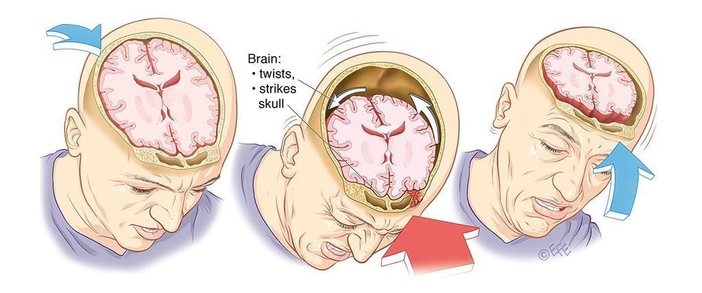 ما هو ارتجاج الدماغ؟ وما هي أعراضه وكيفية الإصابة به؟