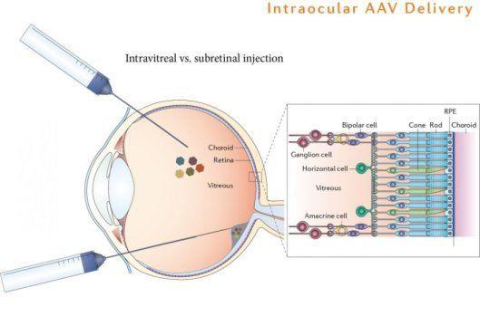 الفيروس المرتبط بالفيروس الغدي Adeno-associated virus المصمم لاستهداف خلايا معينة في الشبكية يمكن حقنه مباشرةً داخل الجسم الزجاجي للعين لإيصال الجينات بشكل أدق مما يمكنه نوع الفيروس AAVs الطبيعي، والذي يجب حقنه تحت الشبكية مباشرةً. إذ أخذ علماء الأعصاب من جامعة كاليفورنيا في بيركلي AAVs المستهدف إلى الخلايا العقدية وزودها بالجين المسؤول عن بروتين اللون الأخضر الأوبسين وحولوا الخلايا العقدية العمياء في الحالة الطبيعية إلى خلايا حساسة للضوء.