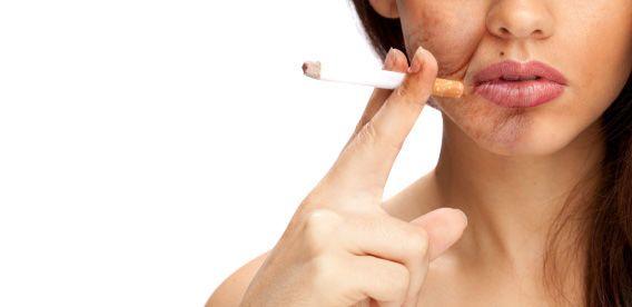 اطرد العادة بعيدا: 10 نصائح علمية للإقلاع عن التدخين