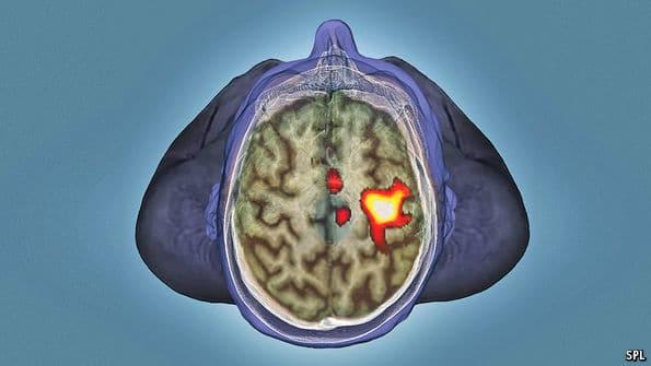 ما حقيقة الدراسة المزعومة التي قد تدمر نتائج 3000 بحث علمي متعلق بالدماغ والأعصاب؟