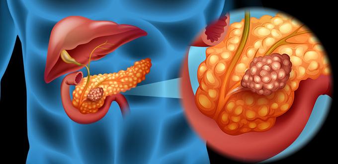 متلازمة زولينجر إليسون: الأسباب والأعراض والتشخيص والعلاج - حالة نادرة تؤثر على الجهاز الهضمي - الأورام الجاسترينية - البنكرياس - الأمعاء الدقيقة