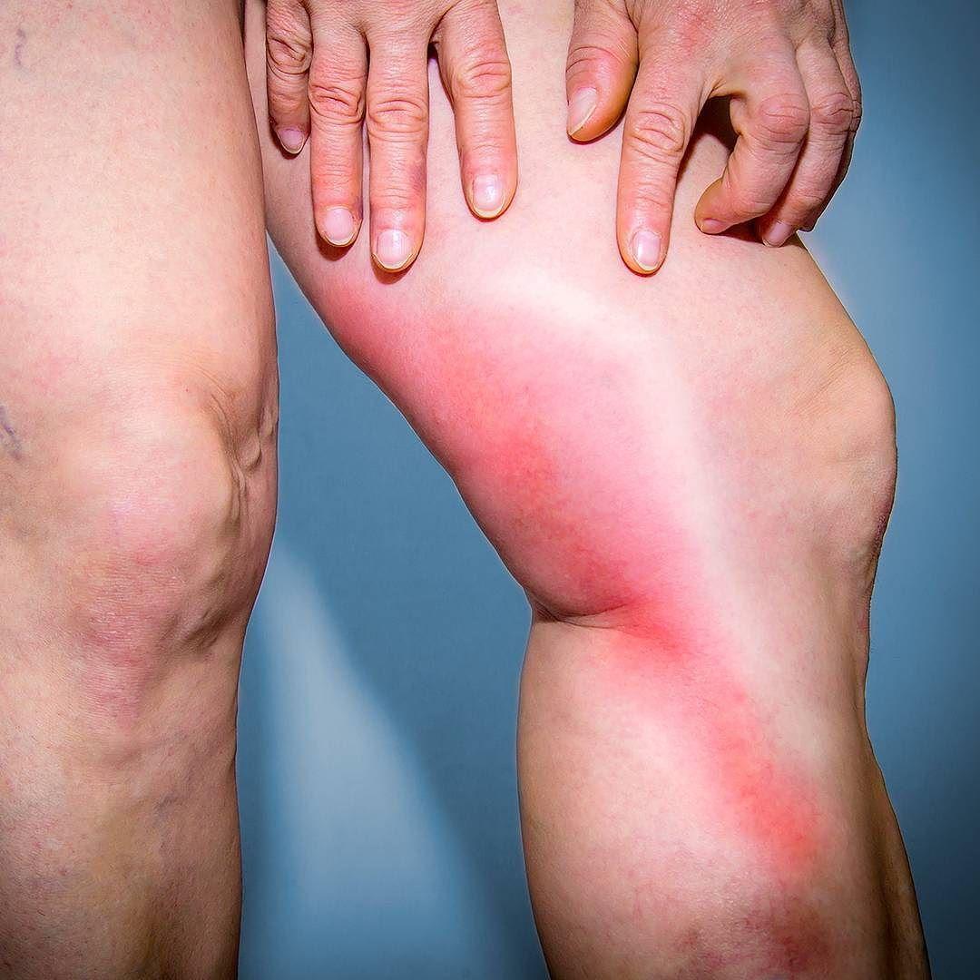التهاب الوريد الخثري السطحي: الأسباب والأعراض والتشخيص والعلاج - حالة التهابية تصيب الأوردة بسبب تشكل خثرة دموية تحت سطح الجلد