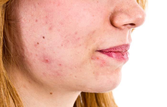 بقع الوجه والبقع الداكنة على الجلد: الأسباب وكيفية علاجها