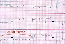 الرفرفة الأذينية على تخطيط القلب الكهربائي