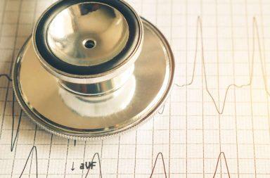تسرع القلب البطيني غير المنتظم من نوع تورساد دي بوانت - الأسباب والأعراض والتشخيص والعلاج - اضطرابات نظم القلب المهددة للحياة