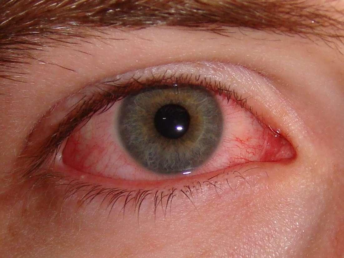 التهاب الملتحمة أو العين الوردية: الأعراض والأسباب والعلاج والتشخيص التهاب بملتحمة العين بروز واضح للأوعية الدموية الموجودة في العين