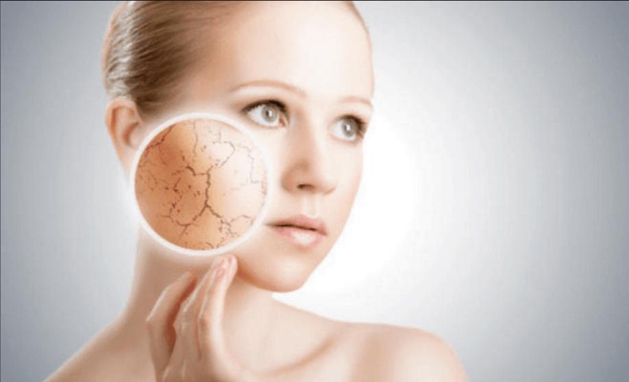 الاكزيما التاتبية Atopic Eczema اعراضها و طرق التعامل معها