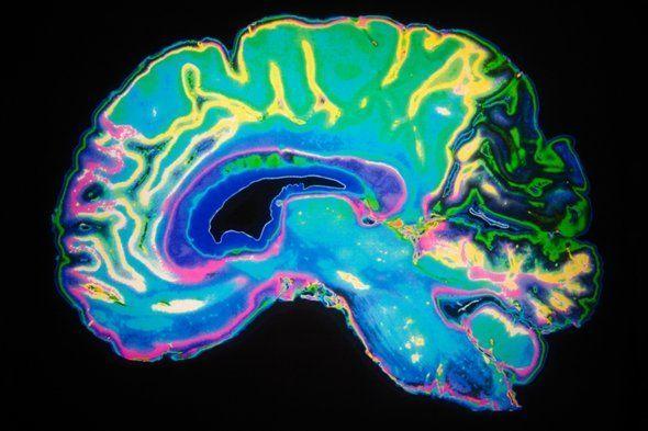 كيف يختلف دماغ المتخصص بالرياضيات عن دماغ أي شخص آخر