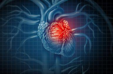 اعتلال عضلة القلب الكحولي المنشأ الأسباب والأعراض والتشخيص والعلاج علاج اعتلال عضلة القلب الكحولي الإفراط في شرب الكحول فشل القلب