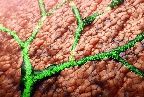 التهاب الأقنية الصفراوية الأسباب والأعراض والتشخيص والعلاج علاج التهاب الأقنية الصفراوية العصارة الصفراوية الكبد المرارة الاثني عشر
