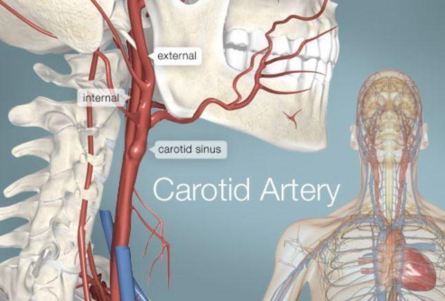 تضيق الشريان السباتي أعراض تضيق الشريان السباتي الأسباب والأعراض والتشخيص والعلاج السكتة الدماغية الجلطة الدموية نقل الدم إلى الدماغ