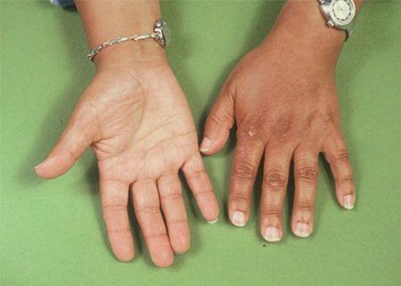 أسباب الإصابة بداء أديسون أعراض داء أديسون الأعراض طرق العلاج التشخيص الغدد الكظرية مرض أديسون الكورتيزول الجهاز المناعي استجابة مناعية ذاتية