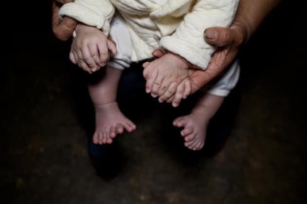 طفل صيني يولد بـ31 إصبعًا