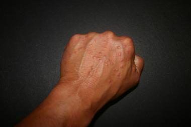 الورم الحبيبي الحلقي: الأسباب والأعراض والتشخيص والعلاج حالة جلدية عادةً ما تُسبب طفحًا الألم أو الحكة السعفة أو القوباء الحلقية ringworm