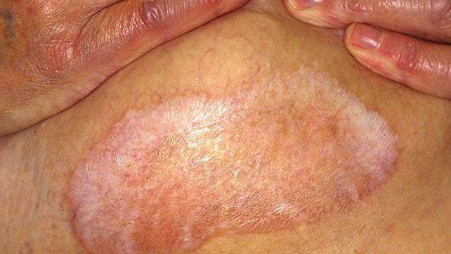 الحزاز الجلدي المتصلب Lichen sclerosus الأسسباب والأعراض والتشخيص والعلاج بقع من الجلد الأبيض اللامع بقع بيضاء في المناطق التناسلية والشرجية