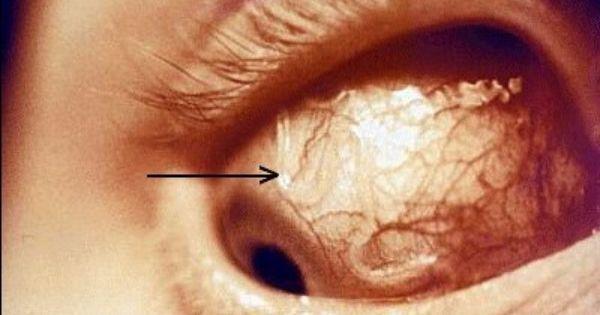 دودة تصل إلى عين شاب، والزاحف العجيب تمّت إزالته في إحدى أغرب الحالات