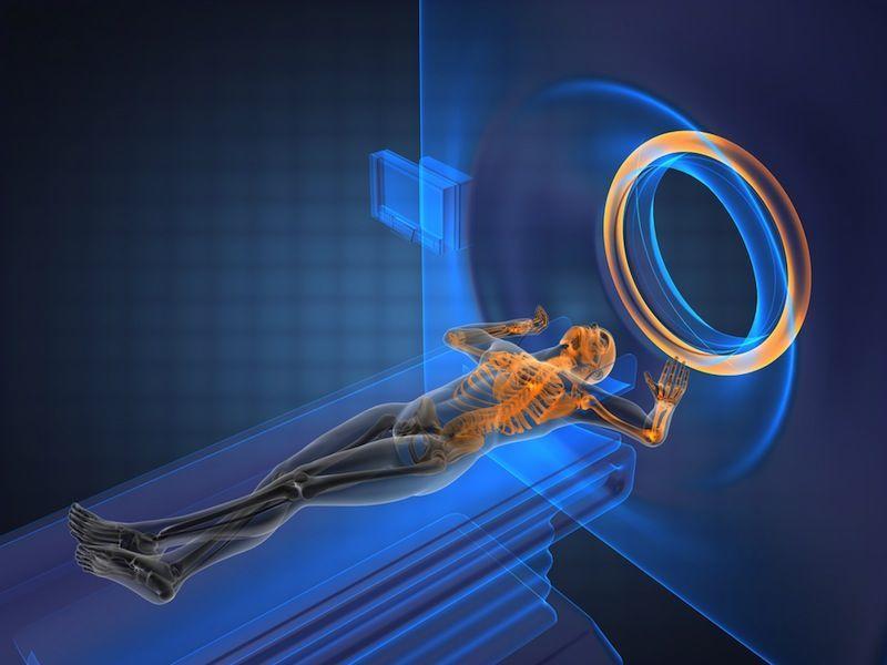 ما هو التصوير بالرنين المغناطيسي وكيف يعمل؟
