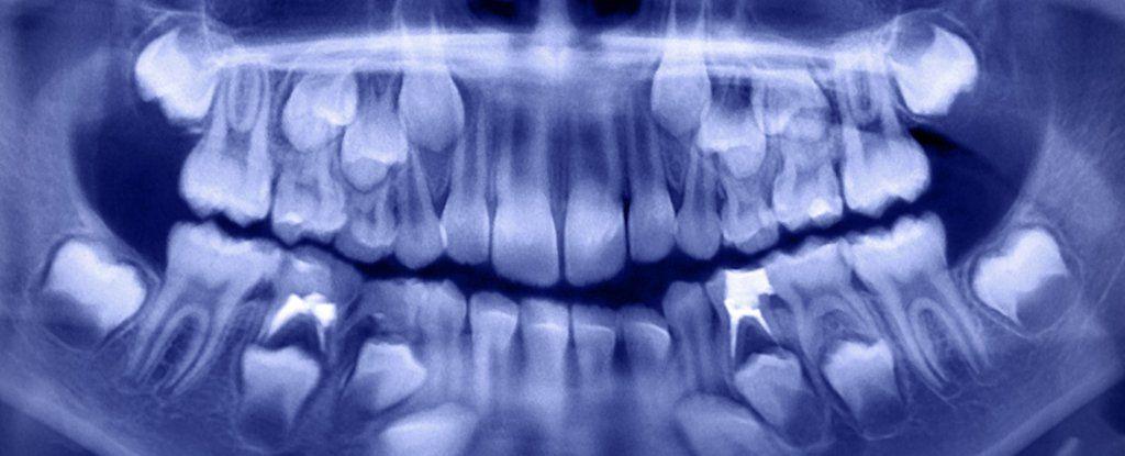 أطباء الأسنان قلعوا أكثر من 500 سن لطفل بعمر السبعة أعوام إجراء عملية لقلع 500 سن لطفل بعمر السابعة قلع الأسنان عند طفل هندي صغير