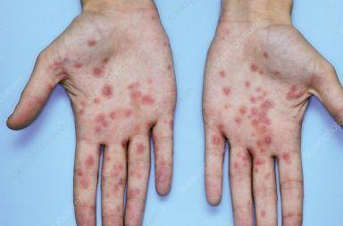 الحمامى عديدة الأشكال الأسباب والأعراض والتشخيص والعلاج علاج الحمامى عديدة الأشكال الحمى أو الاحمرار الطفح الجلدي النقطي على الجسم