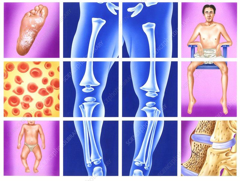 8 علامات على عوز الفيتامينات يجب عليك معرفتها - اتباع نظام غذائي متوازن ومغذ له فوائد كثيرة - النظام الغذائي فقير العناصر الغذائية