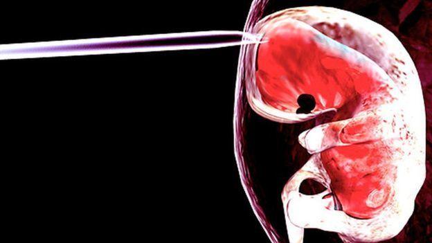 هل يتحول السائل الامنيوسي ( السلوي ) دواء لتقوية العظام ؟