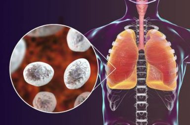 الالتهاب الرئوي بالمتكيسة الجؤجؤية: الأسباب والأعراض والتشخيص والعلاج Pneumocystis Jiroveci Pneumonia مرض فطري يصيب الرئتين