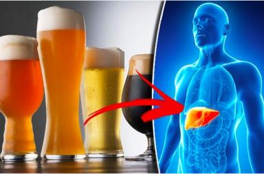 أعراض التهاب الكبد الكحولي أسباب الإصابة بالتهاب الكبد الكحولي العلاج الوقاية شرب كميات كبيرة من الكحول فشل الكبد التلف الكبدي
