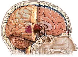 أسباب الورم النجمي أعراض الورم النجمي التشخيص العلاج الأورام الدماغية الخلايا الدبقية الخلايا العصبية أورام الدماغ الخلايا النجمية