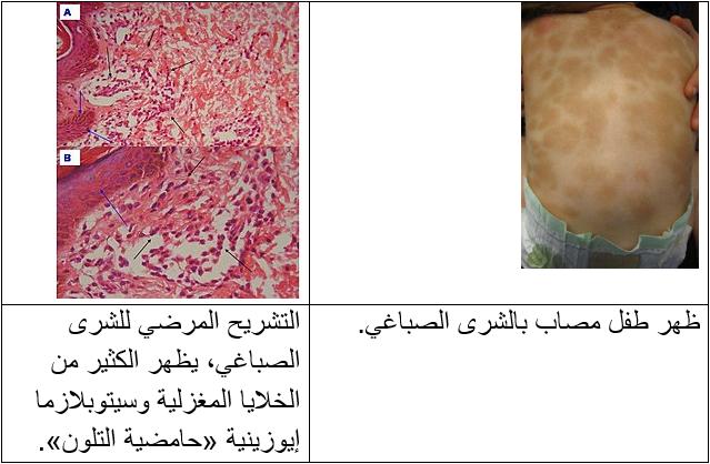 الشرى الصباغي Urticaria pigmentosa: الأسباب والأعراض والتشخيص والعلاج - النمط الأكثر شيوعًا من كثرة الخلايا البدينة في الجلد