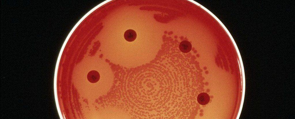 للاسف اول حالة وفاة نتيجة بكتيريا مقاومة لكل المضادات الحيوية
