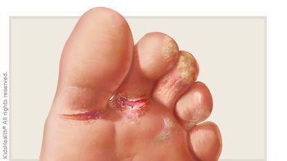 قدم الرياضي: الأسباب والأعراض والوقاية وطرق علاج منزلية مشكلة جلدية شائعة تصيب الأقدام سببها الفطريات علاجات منزلية الجلد المتقرح