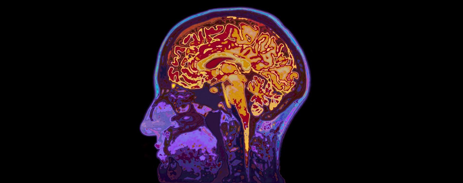 دراسة جديدة تبشر بعلاج مرض ألزهايمر الخلايا الدبقية الصغيرة التدهورَ العصبي الناجم عن الإصابة بمرض كـألزهايمر بروتين تاو في الأنسجة العصبية