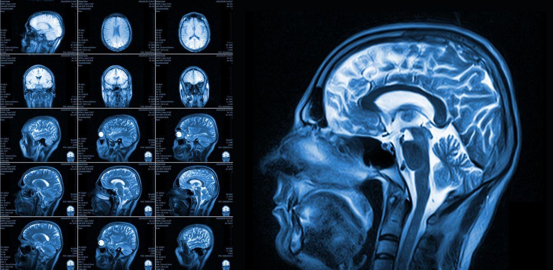 نجح الباحثون بتحديد مكان أول نشاط دماغي عند الأجنة