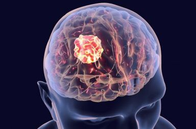 الأورام في الدماغ