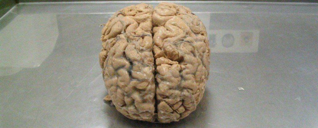 هل يمكن للتمارين زيادة سعة ذاكرتنا ؟ هذا ما قالته دراسة جديدة