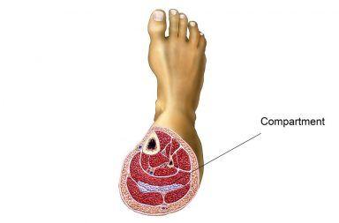 أعراض متلازمة الحيز أو المقصورة علاج متلازمة الحيز أو المقصورة الأسباب والأعراض والتشخيص والعلاج تورم العضلات الأعصاب الدم