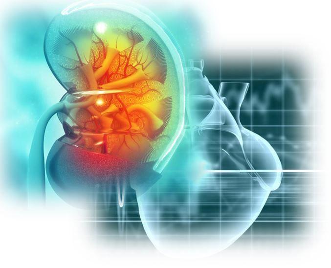 المتلازمة القلبية الكلوية الأسباب والاعراض والتشخيص العلاج أعراض المتلازمة القلبية الكلوية مشاكل القلب مشاكل الكلى الدم قصور القلب الاحتقاني