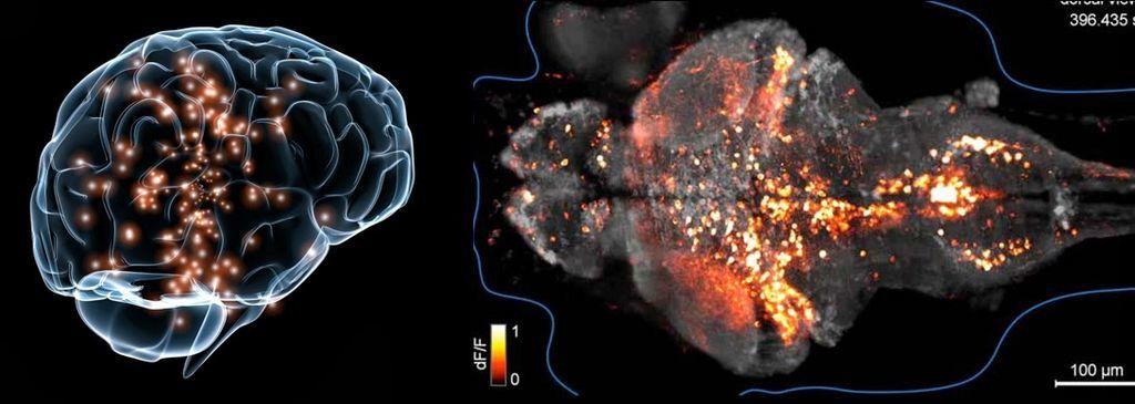 دماغ المتأتئين يختلف عن دماغ الأشخاص الطبيعيين