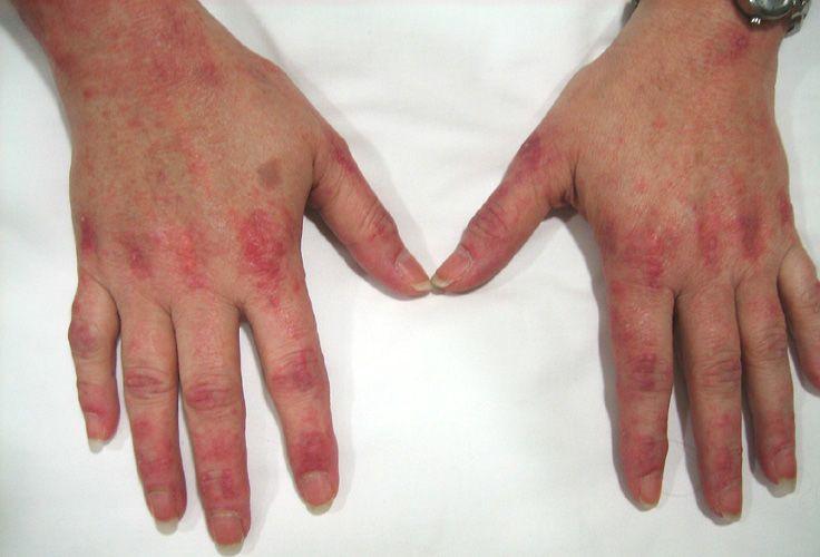 الاعتلال العضلي الالتهابي: الأسباب والأعراض والتشخيص والعلاج مهاجمة الجهاز المناعي لخلايا العضلات وانسجتها الالتهابات العشوائية غير الموجهة التهاب العضلات